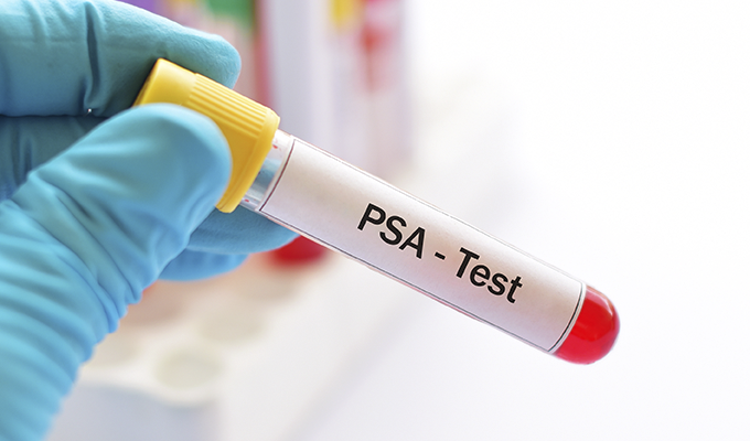 Photo of a PSA test